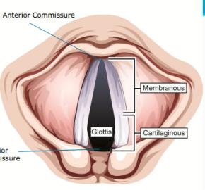 glottis_anatomy1352409946740